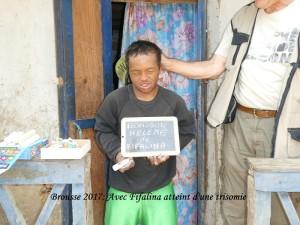 humanite-madagascar-2017-brousse-fifalina-tisomie